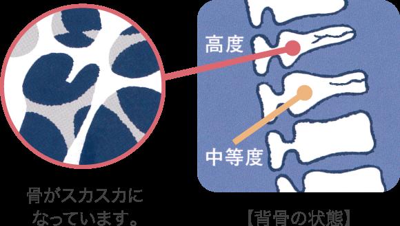 骨粗しょう症の骨