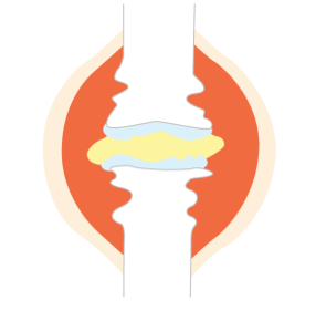 関節リウマチの関節破壊ステージⅢ (高度進行期)