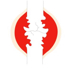 関節リウマチの関節破壊ステージⅣ (末期)