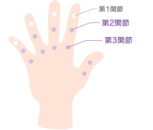 症状が出やすい手指の第2・3関節