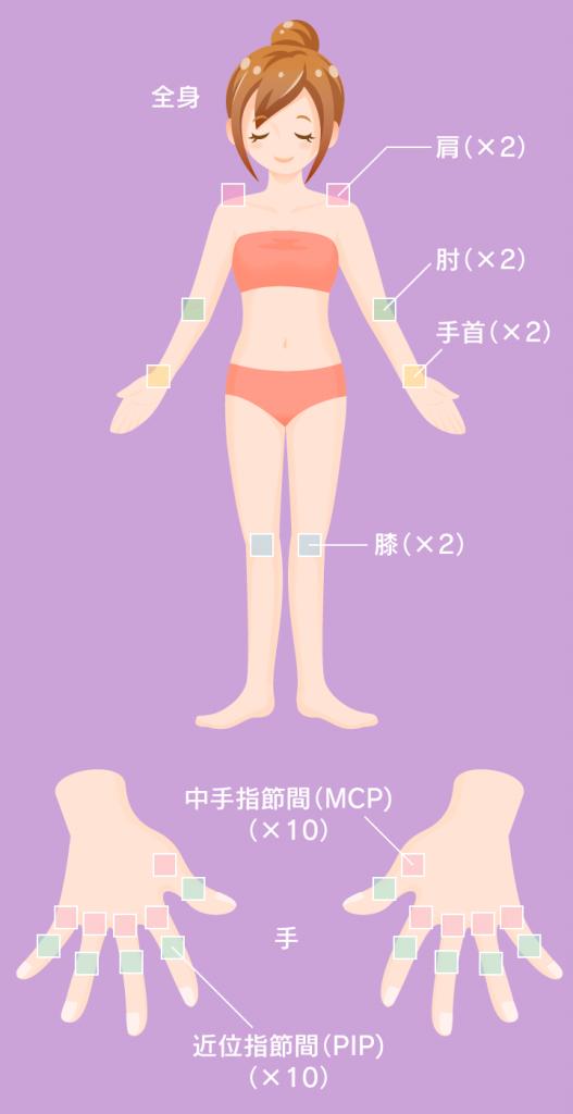 28個の関節のチェック(痛み・腫れ)